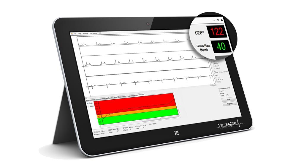 Is your ECG smart?